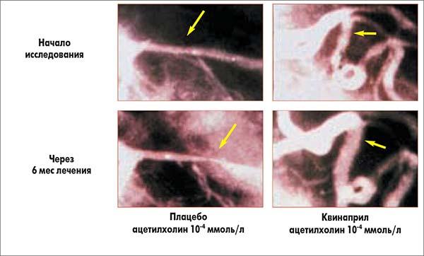 Рис. 12. TREND: сравнительные ангиограммы