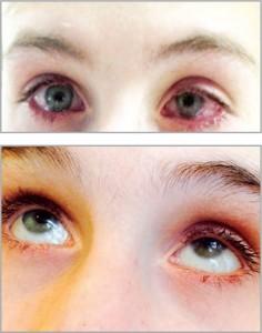 Рис. 4. Динамика терапии хронического рецидивирующего блефарокератоконъюнктивита (до и после)