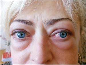 Рис. 3. Пацієнтка з ОГ середньої важкості у активній фазі