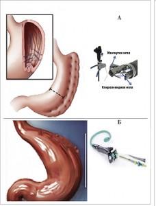 Рис. 4. Эндоскопическая гастропластика (А: эндоскопическая рукавная гастропластика; Б: гастропластика POSE)