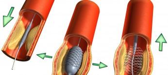 Как улучшить прогноз пациентов после инвазивной реваскуляризации миокарда?