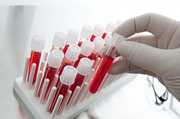 Должны ли препараты сульфонилмочевины оставаться приемлемым выбором для добавления к метформину у пациентов с сахарным диабетом 2 типа?