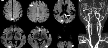 Место ницерголина в лечении дисциркуляторной энцефалопатии