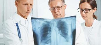 Современные возможности терапии второй линии принемелкоклеточном раке легкого