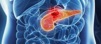 Рак поджелудочной железы. Обзор последних исследований