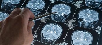 Інтенсивна терапія  тяжкої нейротравми