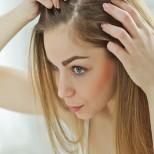 Топическое лечение при псориазе волосистой части головы