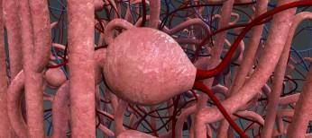 Блокада рецепторов альдостерона – шаг вперед в повышении выживаемости кардиологических больных