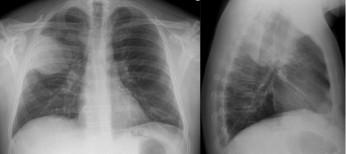 Діагностика й лікування госпітальної пневмонії: практичний підхід