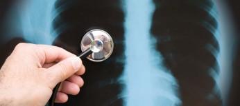 Кортикостероидная терапия у пациентов, госпитализированных свнебольничной пневмонией: систематический обзор и метаанализ