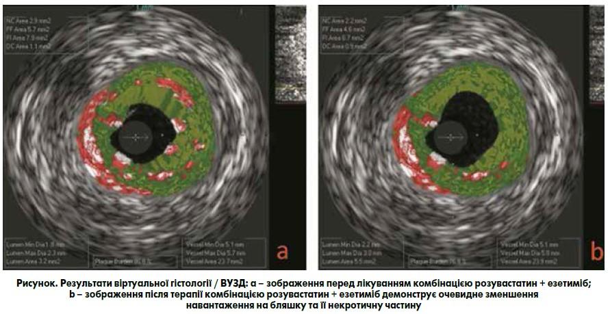 Вплив комбінації розувастатину та езетимібу  наатеросклеротичну бляшку  упацієнтів зішемічною хворобою серця