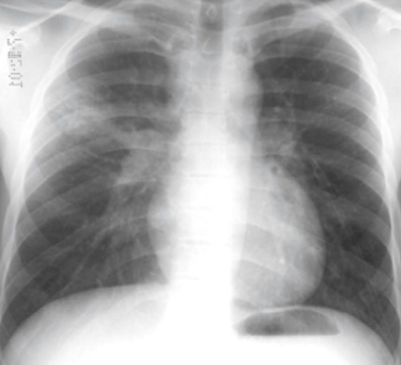 Доброкачественные опухоли легких ибронхов: клинические, морфологические, эндоскопические илучевые аспекты диагностики